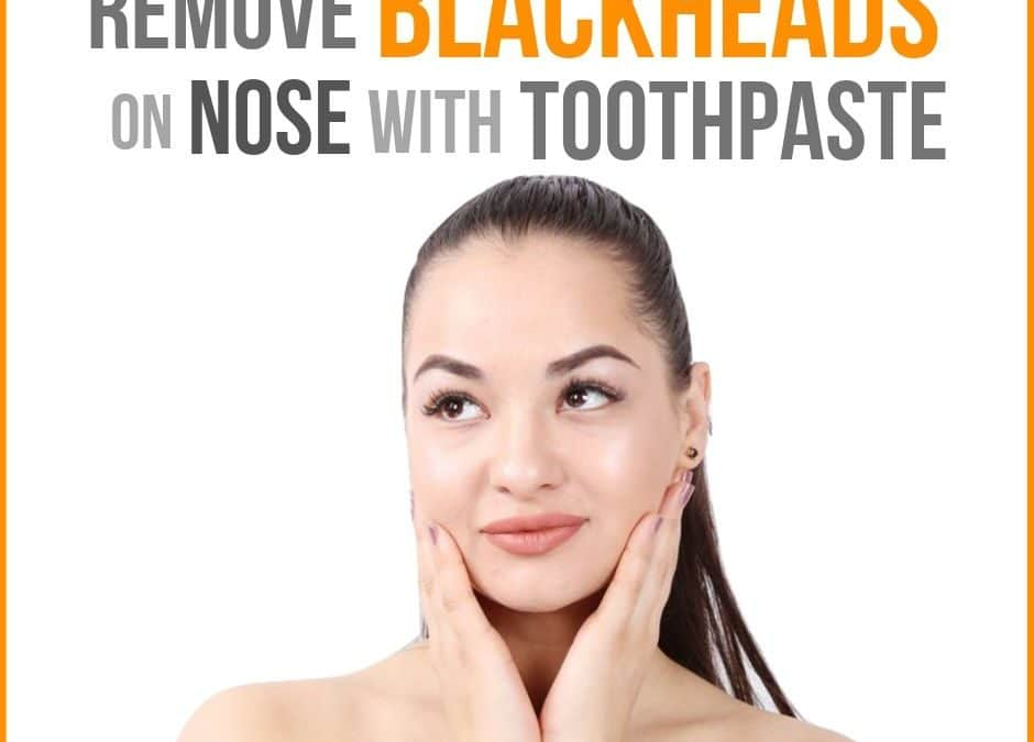 How to Get Rid of Blackheads on Nose with Toothpaste